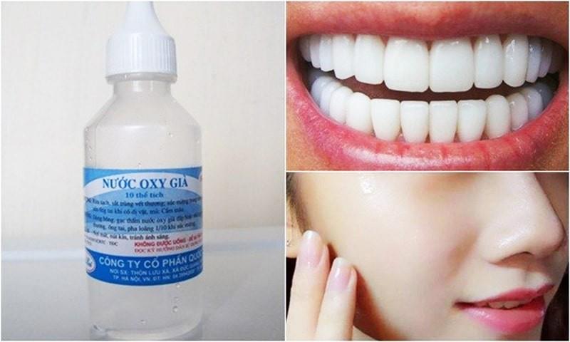 Nước oxy già dùng trong nha khoa