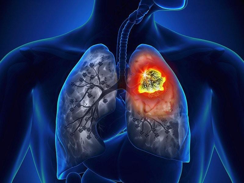 Khí than là tác nhân gây nên các bệnh về phổi