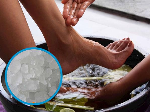 Điều trị bệnh nước ăn chân