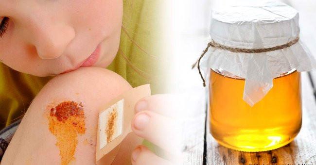 Mật ong sát khuẩn chữa lành vết thương