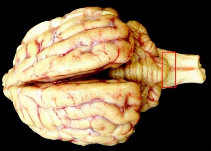 Lấy mẫu kiểm tra vi thể ơ hành tủy não của bệnh bò điên