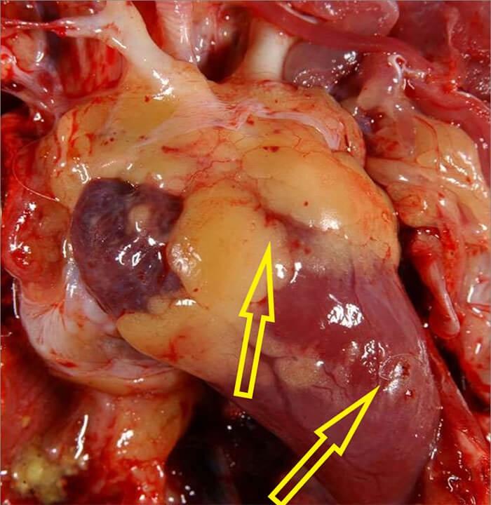 Xuất huyết mỡ vành tim, xuất huyết cơ tim khi bị bệnh cúm gia cầm