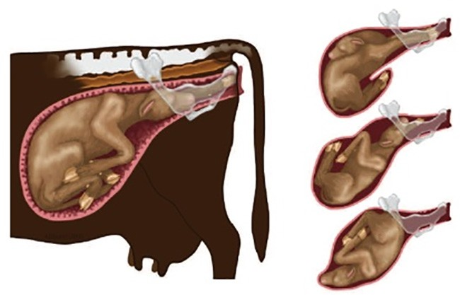 Tư thế của thai không bình thường dẫn đến bệnh khó đẻ ở gia súc