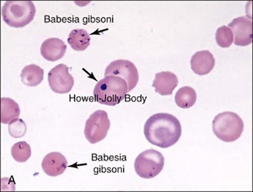Babesia gibsoni trong hồng cầu