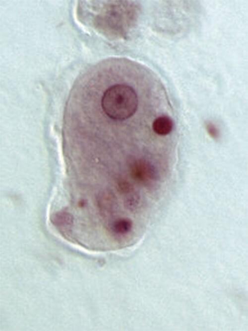 Emtamoeba histolytica gây bệnh lỵ do amip