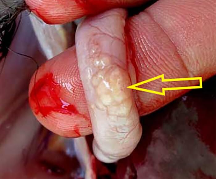 bệnh marek ở gà có nhiều khối u