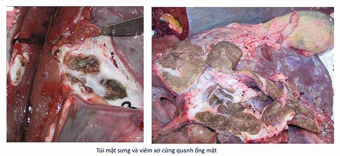 Bệnh tích của bệnh sán lá gan trên trâu bò gia súc