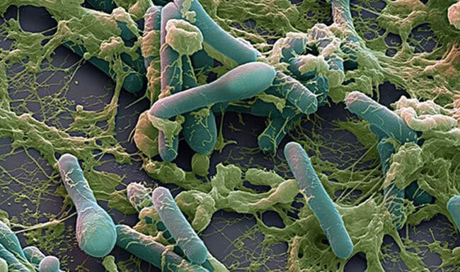 Chẩn đoán chính xác vi khuẩnbotulinum