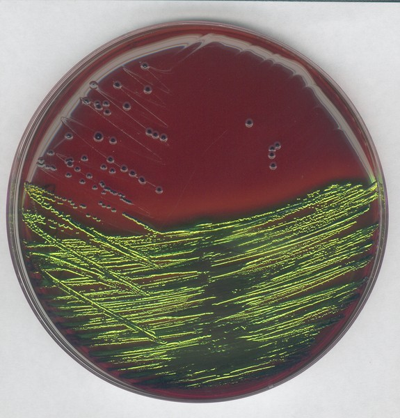EMB agar for the detection and isolation of pathogenic Enterobacteriaceae-500g