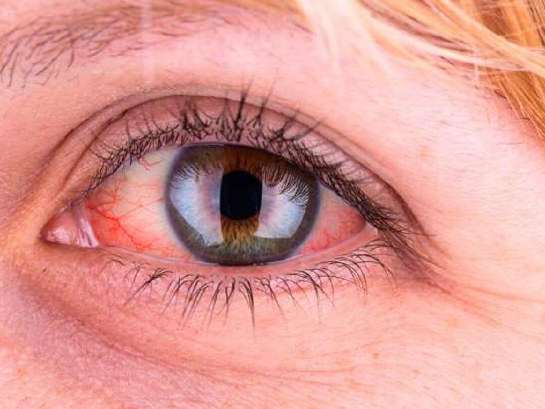 Kiến ba khoang bay vào mắt