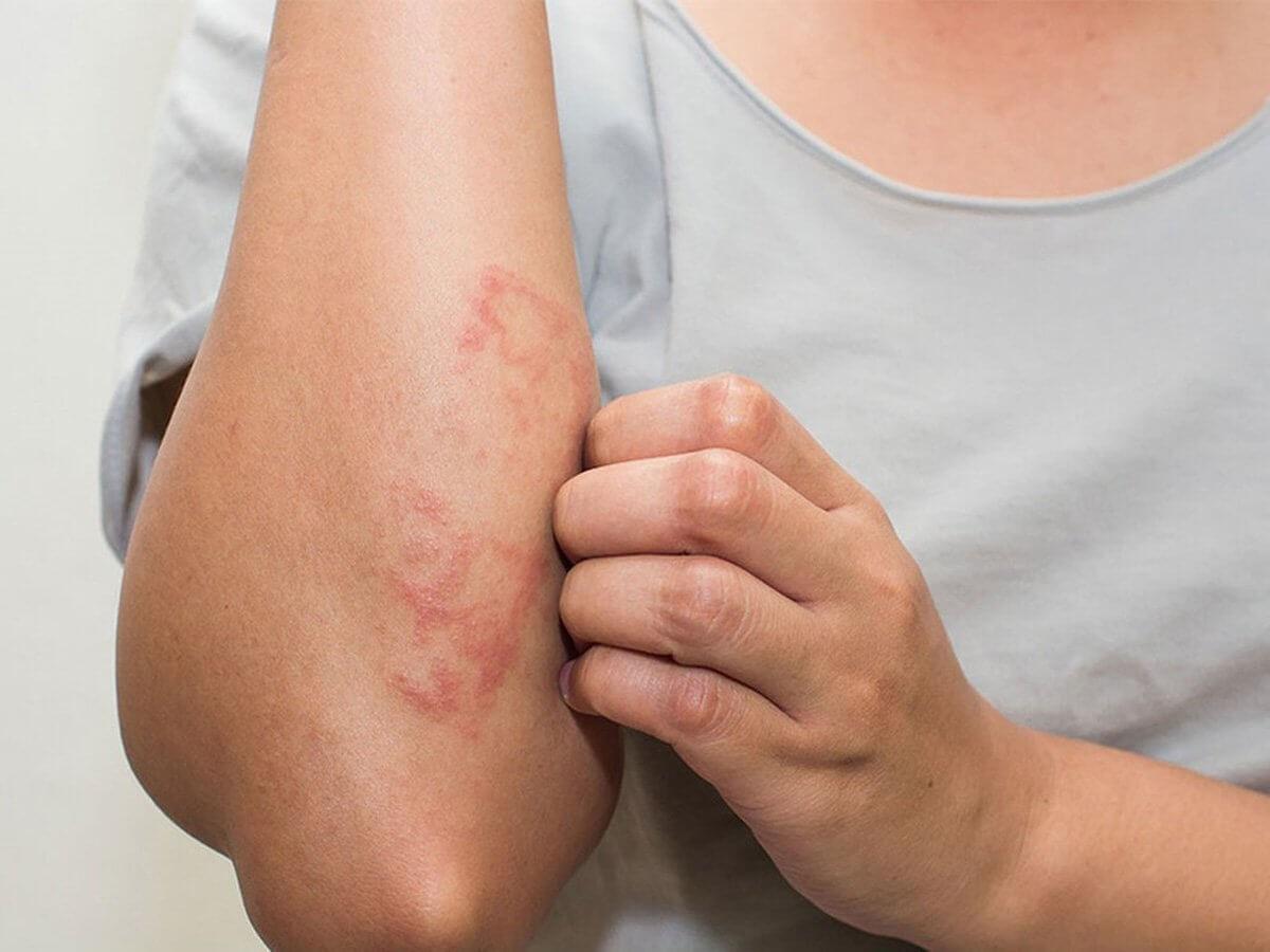 Không được dùng tay trực tiếp khi tiếp xúc với kiến ba khoang