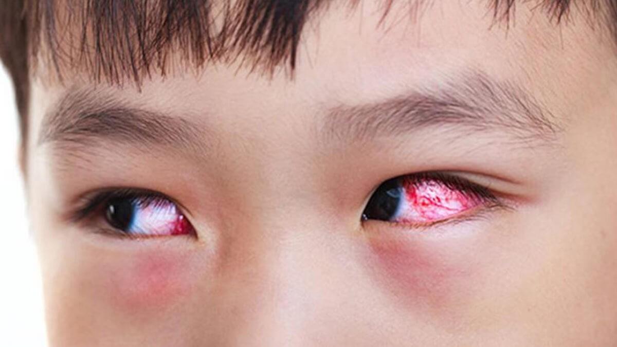 Triệu chứng bệnh đau mắt đỏ ở trẻ em