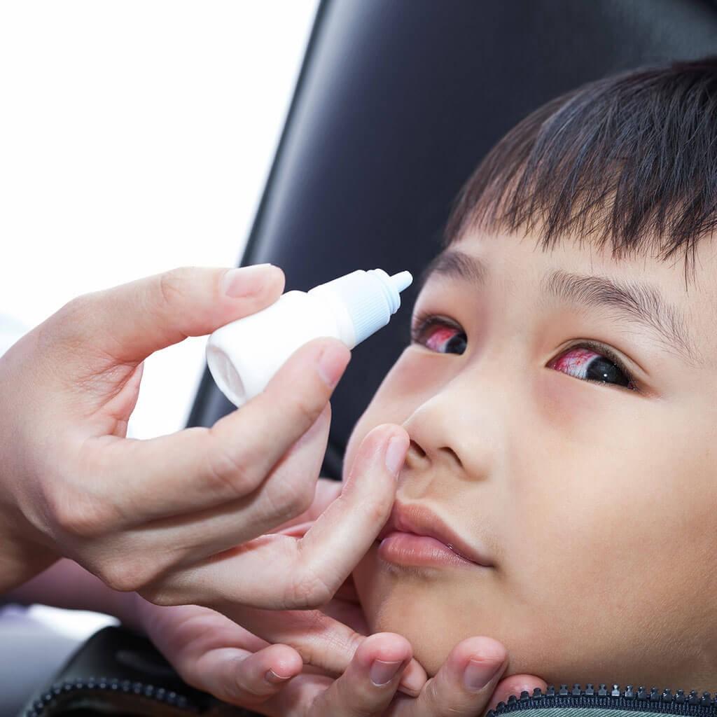 Hướng dẫn cha mẹ cách vệ sinh mắt cho trẻ hàng ngày