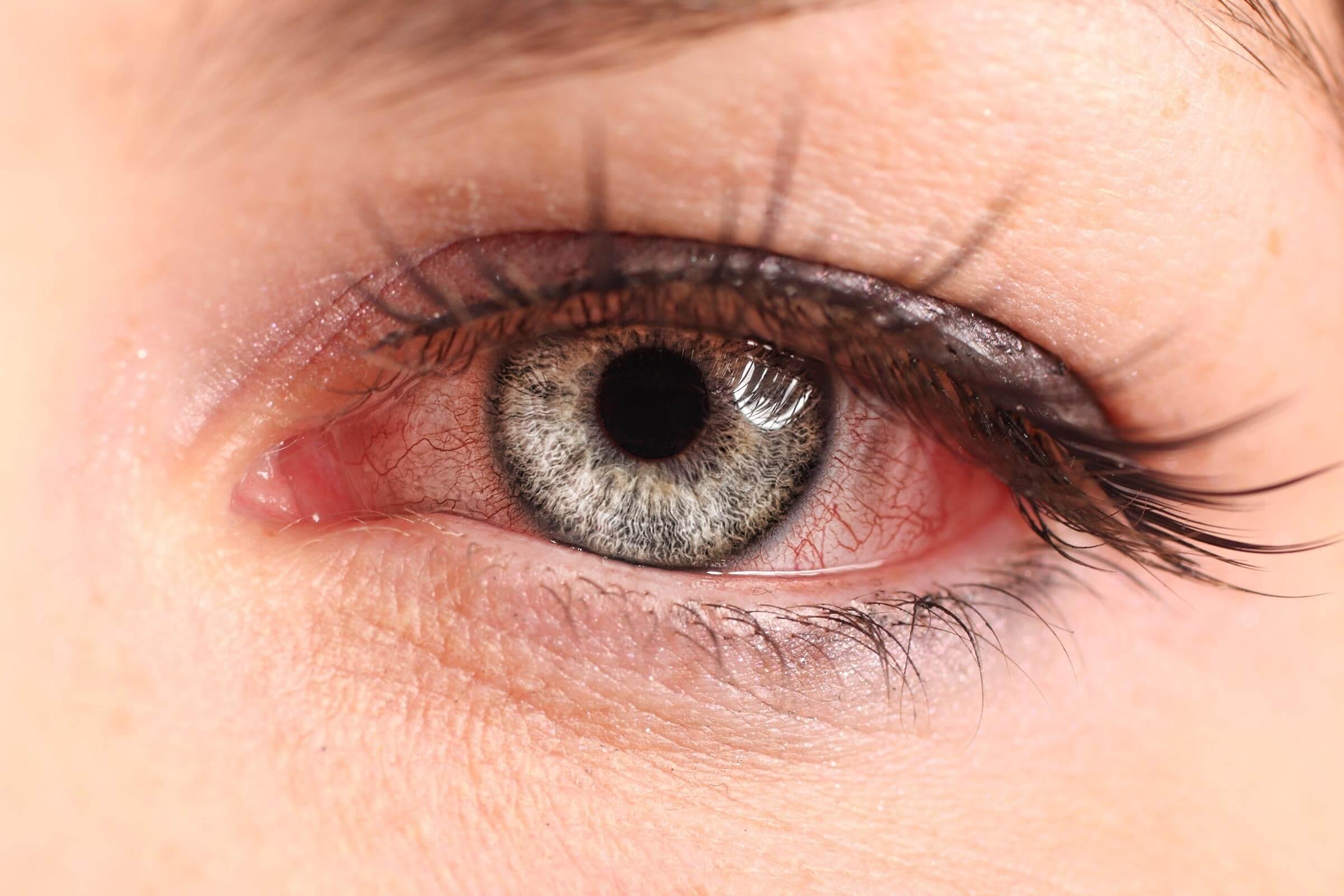 Cách làm giảm sưng mắt an toàn, hiệu quả được chuyên gia chia sẻ