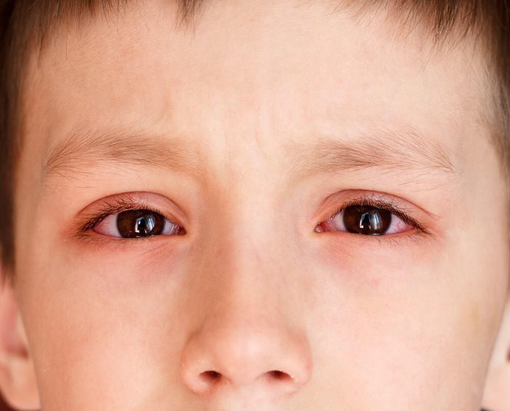 Sưng mắt do tổn thương về mắt
