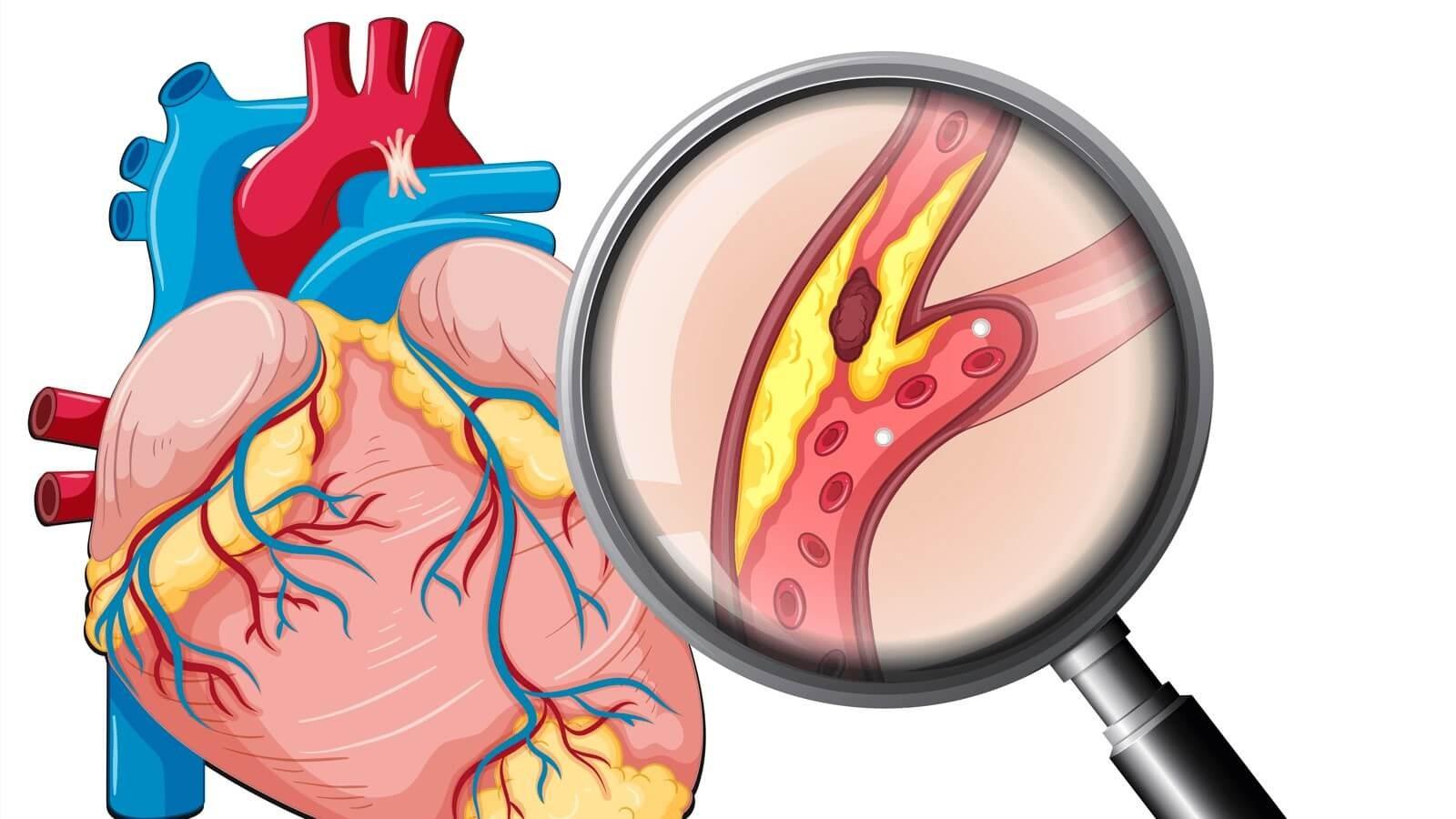 Uống đậu nành giảm nguy cơ mắc bệnh tim mạch