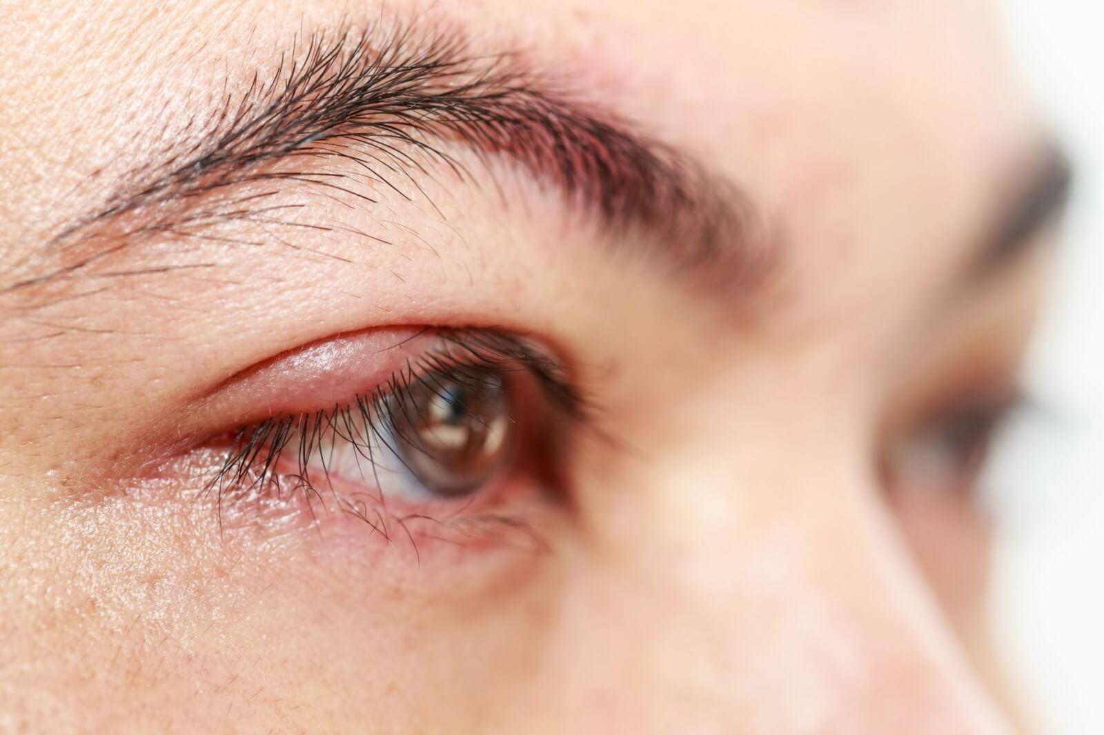Lẹo mắt có tự khỏi không? Cách chữa hiệu quả và an toàn nhất