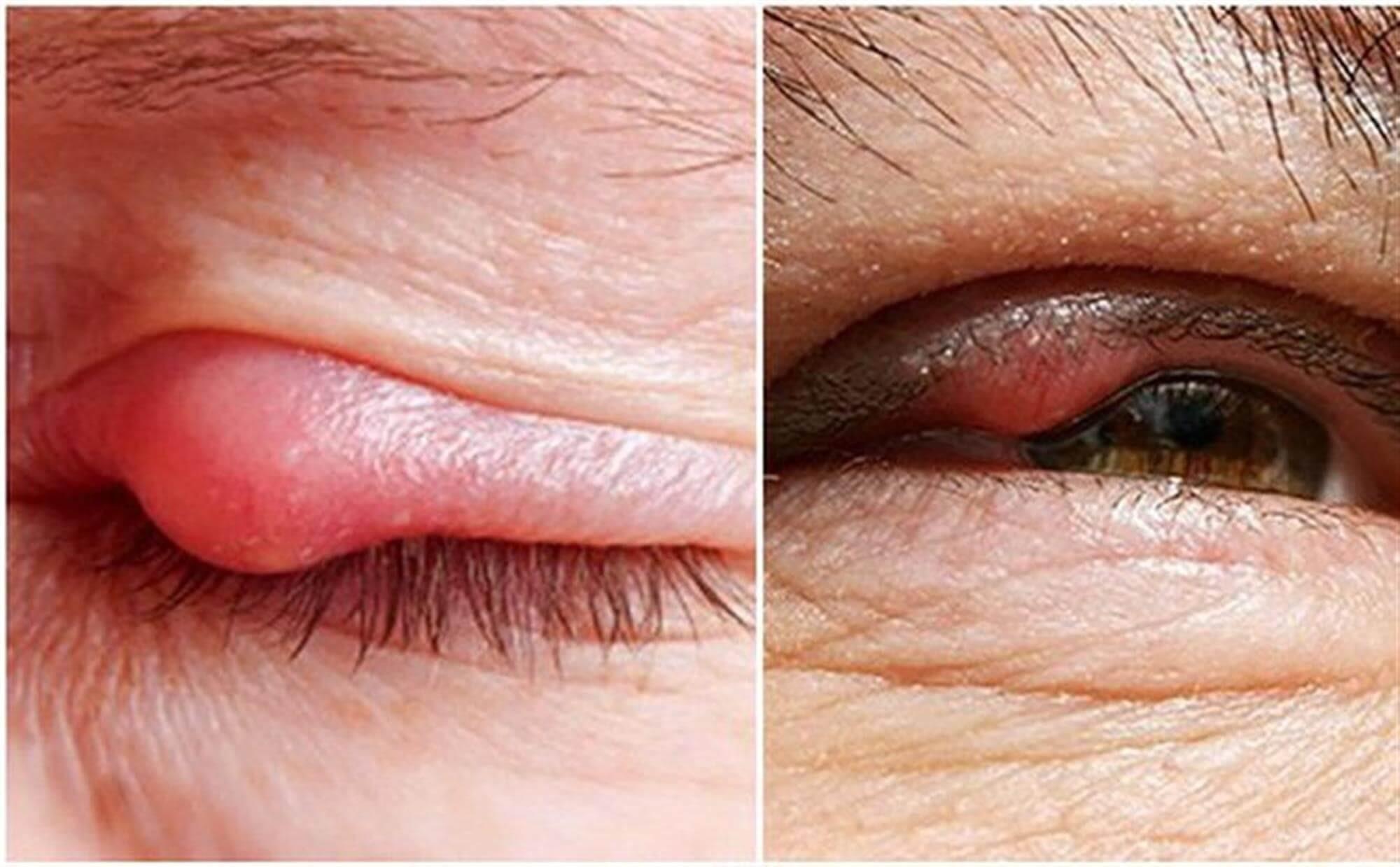 Những biểu hiện của bệnh lẹo mắt
