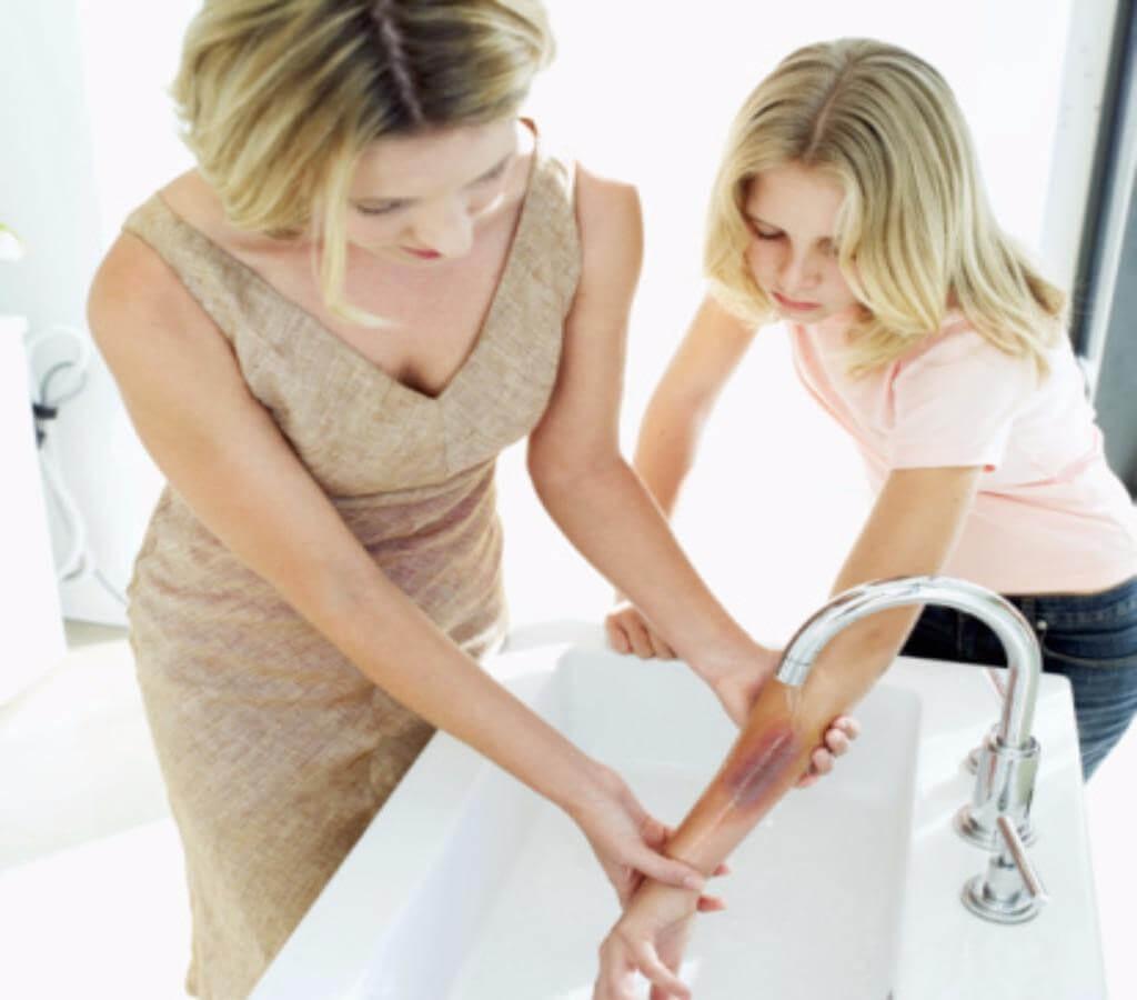 Sơ cứu khi bị bỏng nước sôi