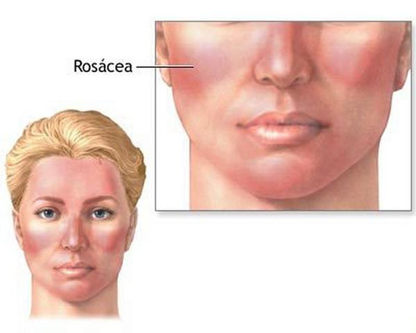 Hàm lượng axit clohydric trong dạ dày thấp có thể dẫn đến bệnh rosacea