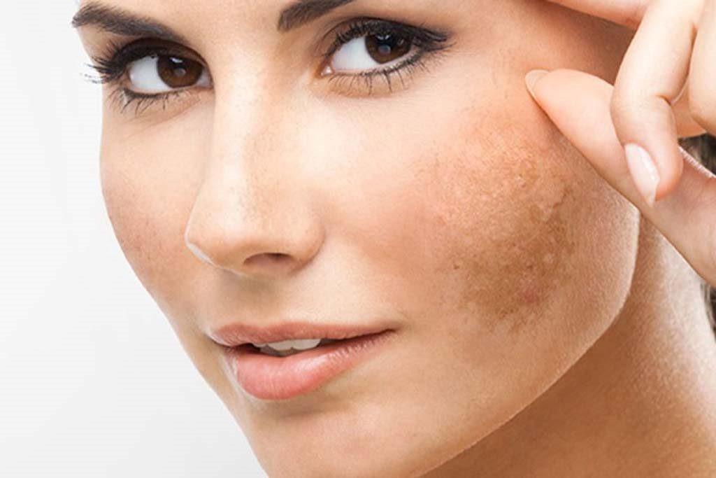 Da mặt là nơi chịu nhiều tổn thương nhất