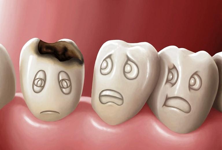 Vôi tôi được dùng để chữa sâu răng