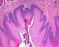 Phloxin B (C.I. 45410) for mycroscopy Merck