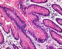Eosin Y (yellowish) (C.I. 45380) for microscopy Certistain® 25g Merck