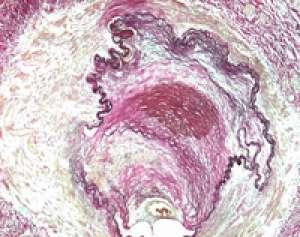 Elastica van Gieson staining kit for connective tissue Merck