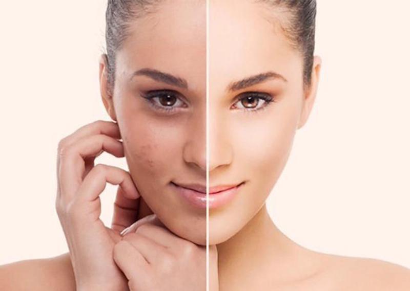 Axeton được dùng khi lột da bằng hóa chất