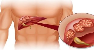 Độc tố aflatoxin được đánh giá là chất gây nên bệnh ung thư mạnh